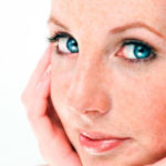Rosacea Facts and Fixes