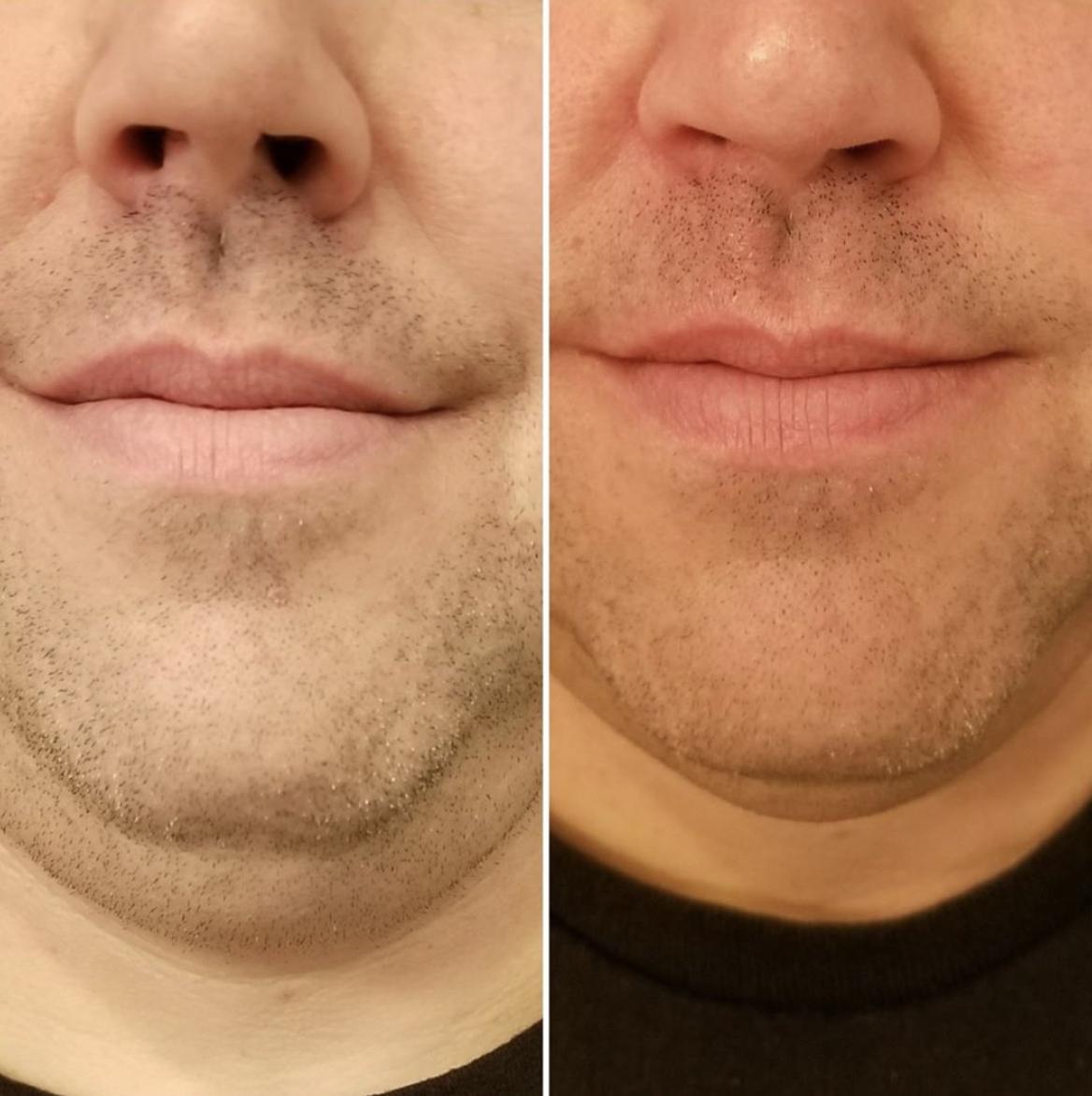 Evoke Double Chin